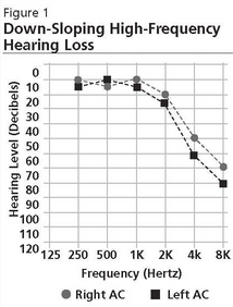 High Frequency Hearing Loss Treatments