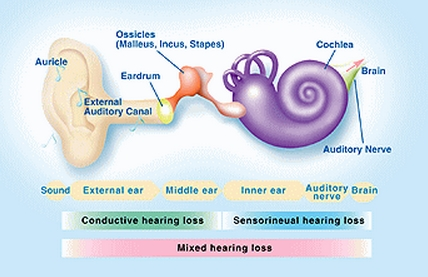 Improve Hearing Loss
