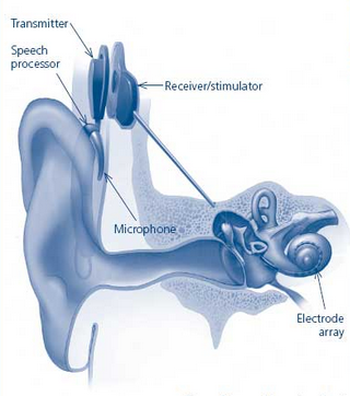 Cochlear Implant - Hearing Loss Cure
